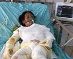 Chồng bị thần kinh, vợ đang nguy kịch vì bỏng nặng rất cần sự giúp đỡ
