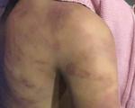 Truy tố gã đàn ông nhiều lần xâm hại, đánh đập con gái của 'người tình'