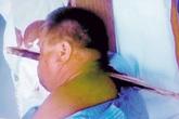 Bị thanh gỗ xuyên vào hốc mắt vẫn tự đi đến bệnh viện xử lý