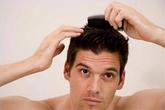Tìm thấy hy vọng sau 8 năm trường rụng tóc