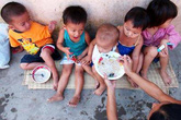 Trẻ em ở 3 nước Đông Dương vẫn suy dinh dưỡng nghiêm trọng