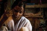 Cuộc đời đẫm nước mắt và đầy nghị lực của những cô gái bị tạt axít