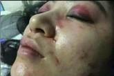 Nữ ca sĩ bị đánh biến dạng mặt vì không chịu tiếp khách