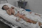 Ngã vào đống tro nóng, bé 8 tuổi bị bỏng nặng