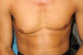Chàng trai có bộ ngực to như phụ nữ khiến nhiều người phát sốc