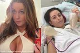 Cô gái trẻ phải cắt bỏ 2 bầu ngực vì ham nâng ngực giá rẻ