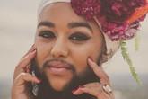 Cô gái có bộ râu rậm như đàn ông