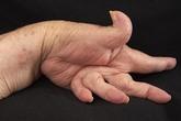 Phòng ngừa biến chứng do viêm khớp dạng thấp