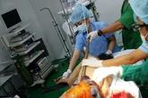 90 phút cấp cứu công nhân bị thanh sắt đâm xuyên cơ thể