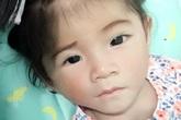 Bé gái Lào Cai 14 tháng tuổi chỉ nặng 3,5 kg hiện đã được 6 kg và hồng hào hơn