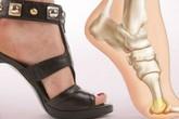 5 lý do khiến bạn không nên mang giày cao gót