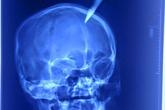 Quảng Ninh: Thai phụ bị dao nhọn đâm vào não sâu 4cm
