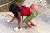 Bé gái Mông có khối u dị thường, đủ chân tay vẫn phải đi bằng 4 chi