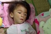Hành trình đặc biệt cứu giúp bé 14 tháng nặng 3,5 kg