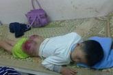 Vụ cháu bé bị bạo hành tại Thái Nguyên: Người mẹ và luật sư nói gì?