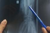 10 bác sĩ mổ nối cánh tay đứt lìa cho người đàn ông bị chém trên phố