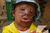 Cậu bé 5 tuổi viết thư xin ông già Noel một khuôn mặt mới