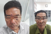 Hai nam bệnh nhân phát hiện ung thư từ lần đi đốt laze thẩm mỹ nốt ruồi lạ trên mặt