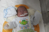 Kỳ diệu bé trai sinh non 800gr xuất viện nặng gần 3kg dù cấp cứu muộn