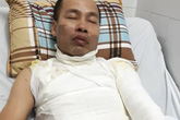 Hà Nội: Bố bị tạt a-xít, con 9 tuổi gào khóc trong xe