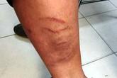 Hà Nội: Phát hiện con trai bị bố đánh phù nề, thâm tím, mẹ trình báo công an