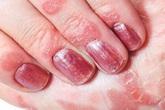 Kim Miễn Khang và Explaq - Giải pháp hàng đầu cho bệnh vảy nến móng tay