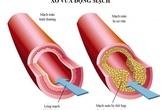 Lipidcleanz - Giải pháp giảm cholesterol, hạ mỡ máu hiệu quả!