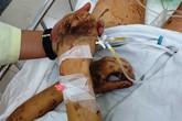 Việt kiều bị tạt a-xít, cắt gân chân ở Quảng Ngãi được đưa sang Canada điều trị