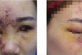 Cô gái trẻ mù mắt, mặt mũi biến dạng vì tiêm chất làm đầy mũi ở spa Đài Loan