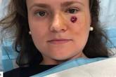 Chỉ từ một nốt mụn thông thường, cô gái trẻ tá hỏa khi bác sĩ khẳng định bị ung thư da