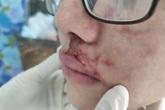 TPHCM: Cô gái trẻ sưng phù mặt khi tiêm filler làm đẹp