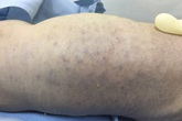 Bé sơ sinh tử vong do nhiễm virus CMV