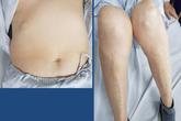 Tháng sụt 7kg nhưng bụng béo ra, người phụ nữ không ngờ mắc loại bệnh do thói quen hàng ngày