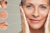 Mỹ phẩm chiết xuất từ tế bào gốc noãn thực vật: lựa chọn mới khắc phục các vấn đề lão hóa của làn da