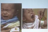 Tăng cường thu hẹp khoảng cách về tỷ lệ suy dinh dưỡng trẻ em vùng núi, vùng khó khăn