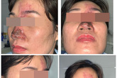 Tiêm filler làm đẹp, nữ bệnh nhân mưng mủ ở mũi, suýt mù mắt