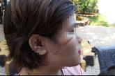 Bắt khẩn cấp nghi can chặn xe rạch mặt cô gái 26 tuổi ở Bà Rịa - Vũng Tàu