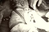 TP.HCM: Em bé chào đời kỳ diệu với 6 vòng dây rốn quấn chéo tử cổ xuống bụng