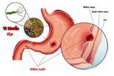 Đột phá mới giúp đào thải trực tiếp khuẩn HP gây ung thư cho người đau dạ dày