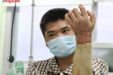 Kỳ tích bác sĩ Việt: Chuyện chưa kể về ca ghép chi đầu tiên trên thế giới từ người cho còn sống