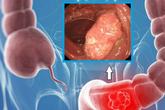 Chuyên gia chỉ rõ 5 triệu chứng cảnh báo ung thư đại tràng, ít nhất 2 đến 3 dấu hiệu bị nhiều người bỏ qua