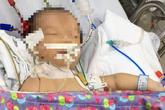 Bé sơ sinh suýt tử vong vì rối loạn chuyển hóa a-xít hữu cơ
