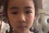 Con 6 tuổi đã cho cắt mí làm đẹp, cảnh báo những cách làm đẹp tai hại thường ngày cha mẹ vẫn làm cho con