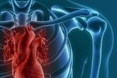 Bé 5 tháng tuổi viêm phổi kéo dài vì dị tật ở tim