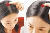 """Cơ thể con người có 5 """"công tắc"""" để mọc tóc, hãy bấm mỗi ngày để ngăn rụng tóc và tạm biệt hói đầu"""