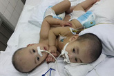 2 em bé dính liền tim, gan ở Sài Gòn đã được tách rời thành công