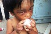 Cháu bé 3 tuổi bị cậu đánh đập dã man, bắt đi ăn xin