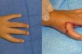 Chuyển ngón trỏ thành ngón tay cái cho bé gái