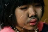 Đáng thương bé gái 9 tuổi bị mọc lông khắp cơ thể