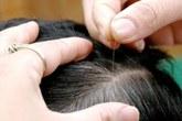 Đoán sức khỏe qua vị trí tóc bạc mọc